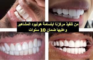 عروض مجمع اروكا الطبي للاسنان و الجلديه و الليزر